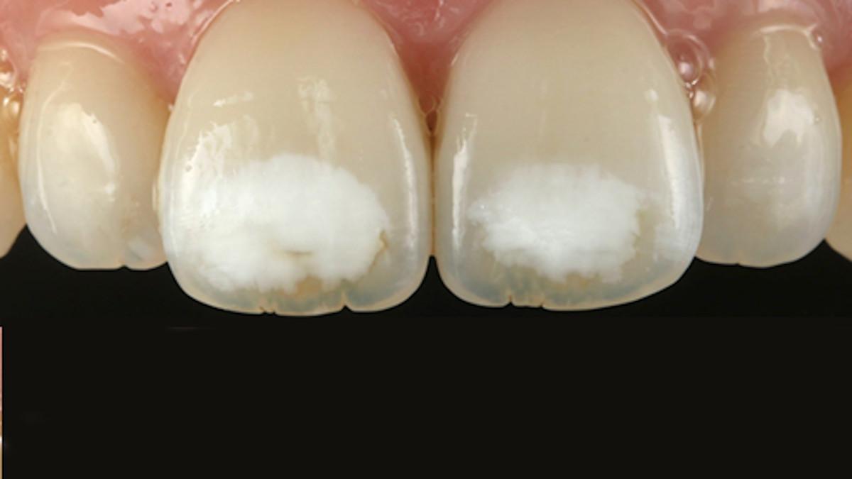 que son las manchas en los dientes